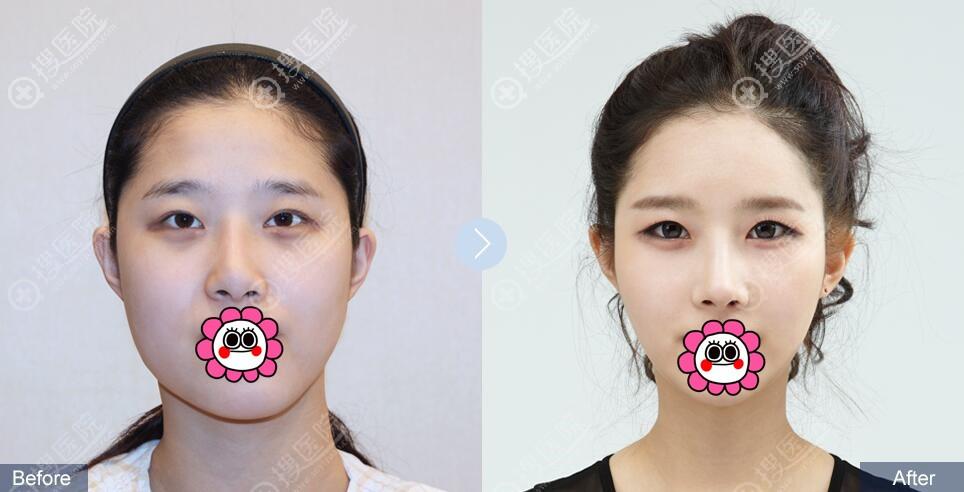 韩国菲斯莱茵鼻修复对比