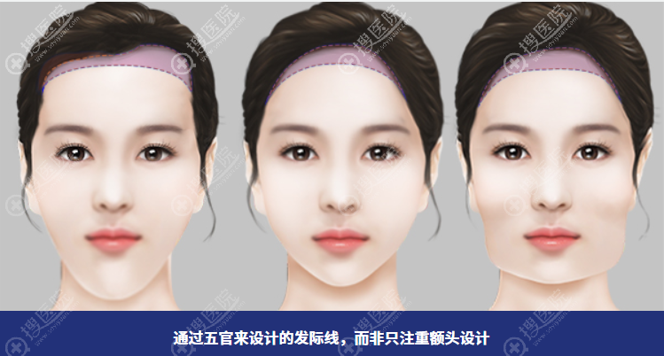 发际线额头缩小术根据顾客脸型设计