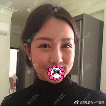 韩国艾恩双眼皮隆鼻恢复两个月效果