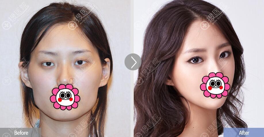 韩国菲斯莱茵颧骨缩小术前后对比图