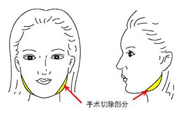 需要切除的下颌角部位