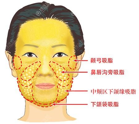 面部需吸脂的部位