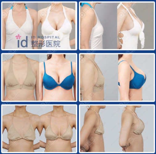 韩国ID整形医院假体隆胸真人案例前后对比图