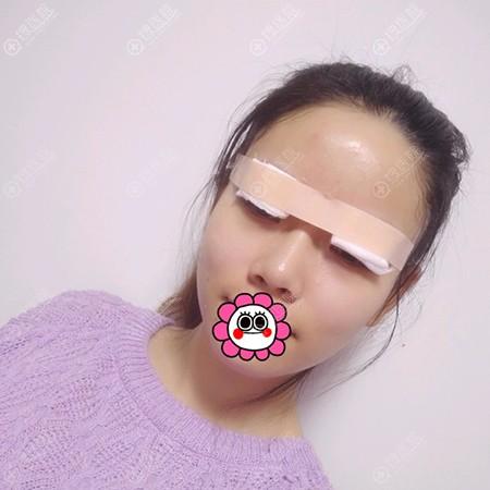 刘晋元做双眼皮术后即刻效果