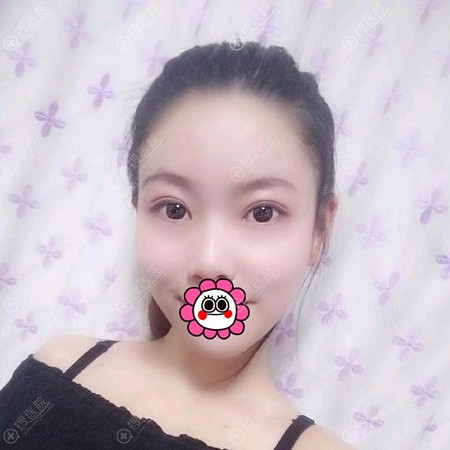 山西省整形外科医院刘晋元做双眼皮恢复一个月