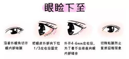 眼睑下致手术方法示意图