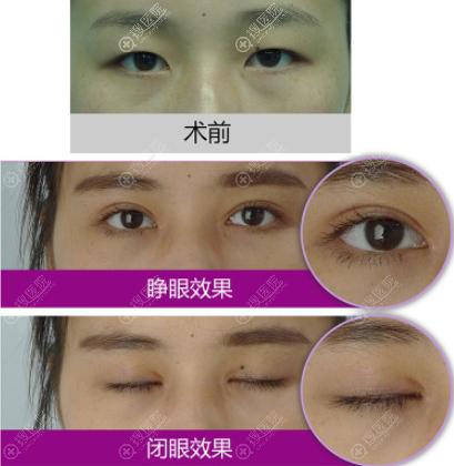 眼脸下致术前后图片效果对比