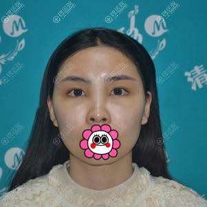 面部脂肪填充术后恢复5天