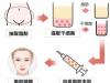 自体脂肪面部填充医院那么多,看下韩国佰诺佰琪有何独特之处?