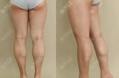 小腿肌肉阻断术真人案例