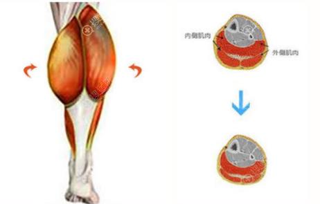 小腿神经阻断术肌肉示意图