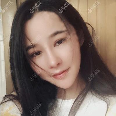 武汉壹加壹张红艳鼻修复术后恢复三个月案例