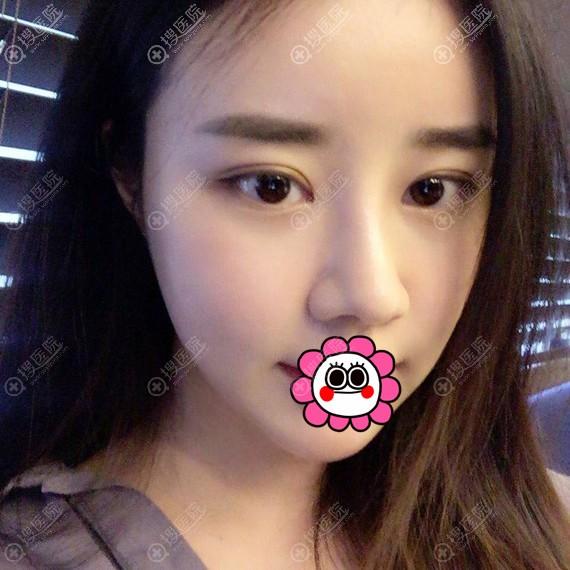 韩国爱婷做鼻子恢复两个月的效果