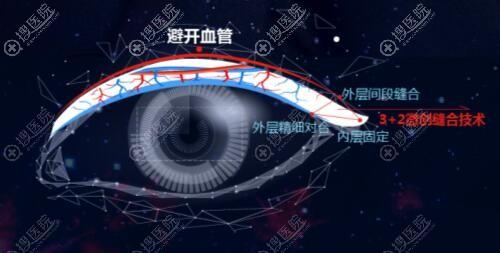 急速纳米双眼皮优势