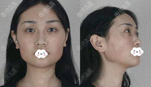 磨骨颧骨+下颌角案例
