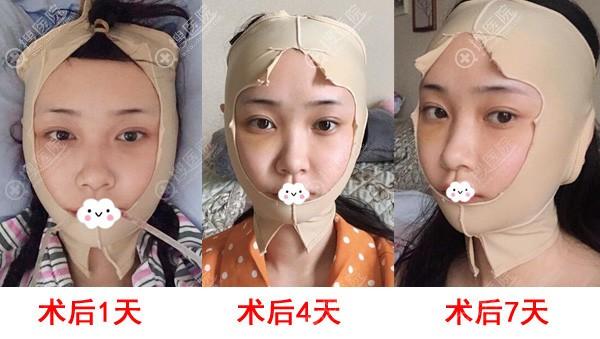 四川友谊医院张立天颧骨+下颌角案例