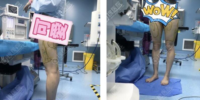 南京美莱大腿吸脂案例