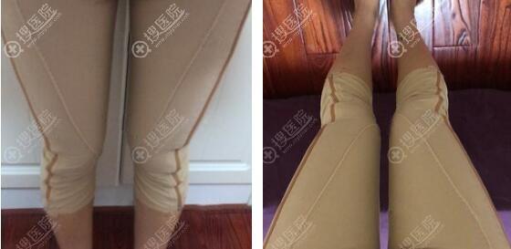 南京美莱大腿吸脂术后恢复图