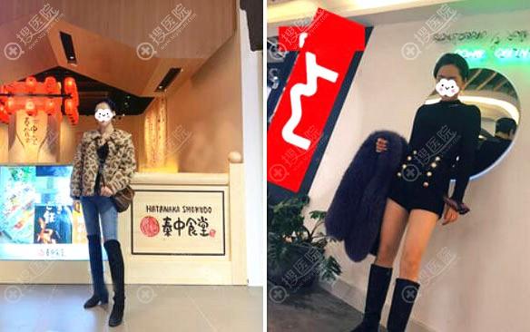 找江苏正规医院南京美莱做大腿吸脂术后效果图