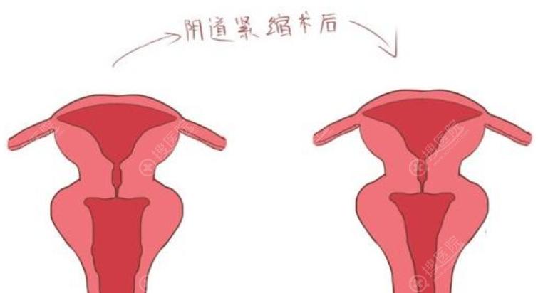 阴道紧缩前后效果对比示意图