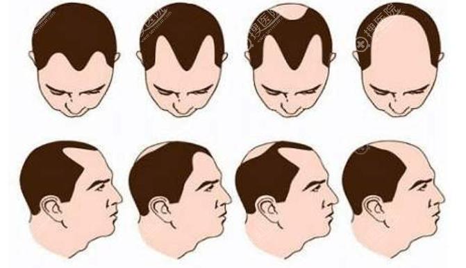 需要做植发手术的人群分类