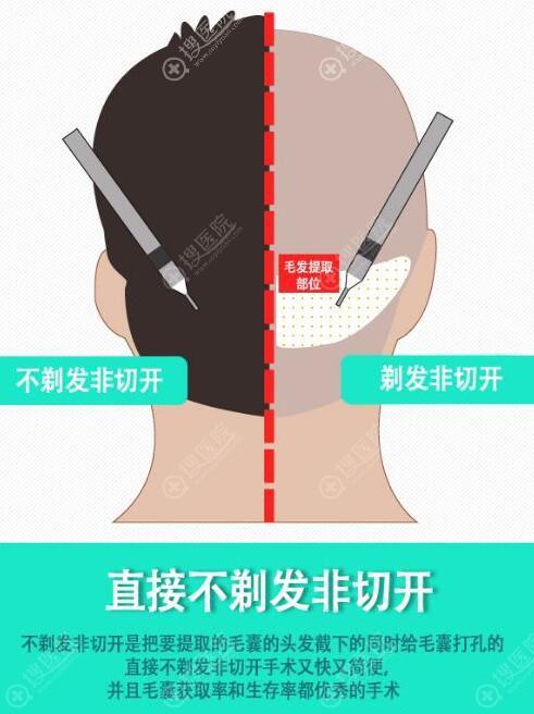 不剃发非切开方式植发原理示意图
