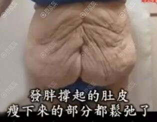 减肥速度过快导致肚子皮肤松弛
