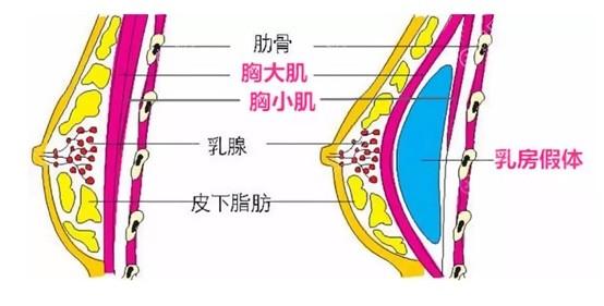 假体隆胸效果怎么样
