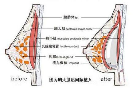 隆胸结构图