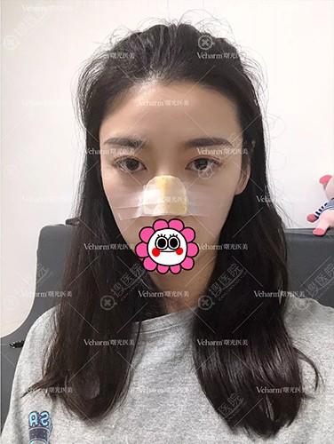 鼻整形术后恢复中