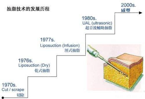 抽脂技术的发展历程