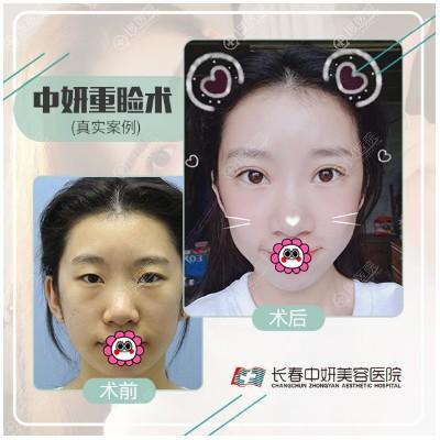 长春中妍刘晓吉双眼皮案例