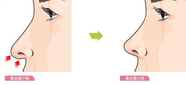 鼻头缩小前后对比效果