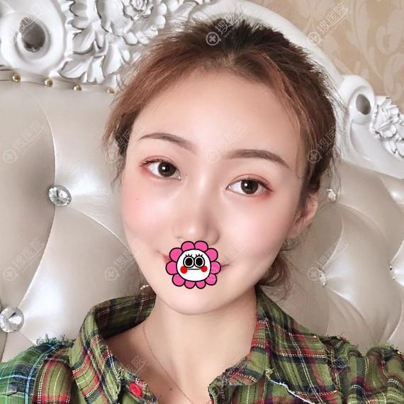 贵阳美贝尔宋俊辉自体脂肪面部填充案例