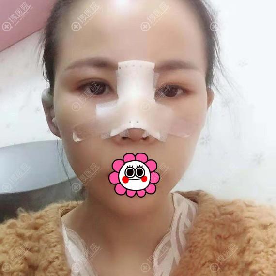 鼻综合手术术后恢复3天