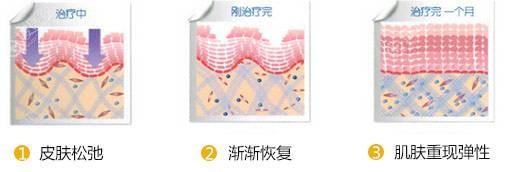 射频溶脂治疗过程示意图