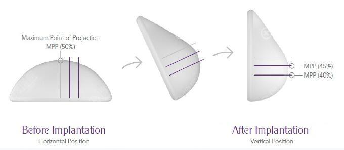 魔滴假体隆胸可随人体活动而变化