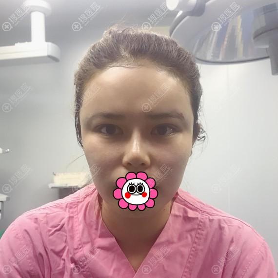 做面部脂肪填充术后即刻