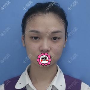 厦门海峡张宏给员工做鼻综合整形恢复后小巧精致的鼻子很适合她