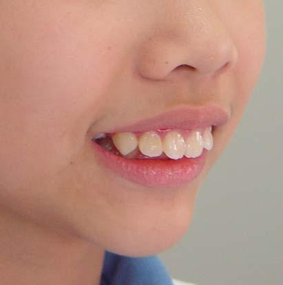 龅牙面部图