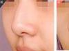 玻尿酸隆鼻的特点、价格费用、效果、术后注意