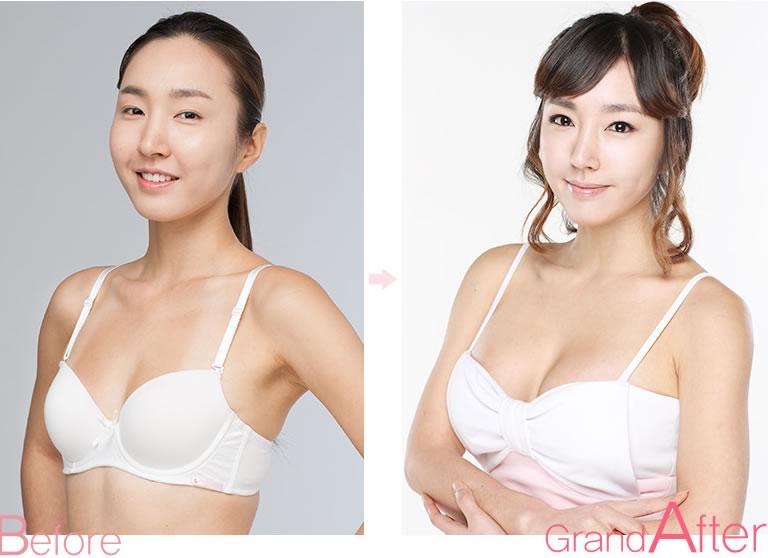 韩国高兰德整形医院隆胸前后对比案例