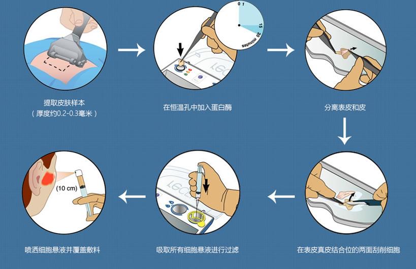 RECELL皮肤再生术治疗过程