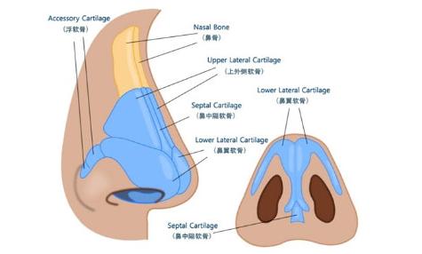 鼻头结构重整技术原理剖析图