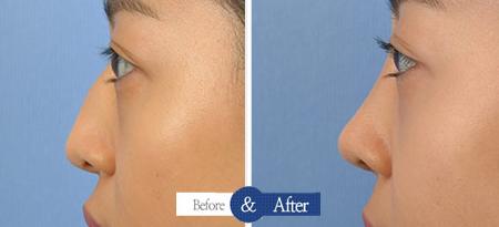 鼻头结构重整技术侧面对比