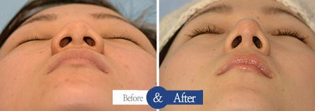 鼻头结构重整技术仰视对比图