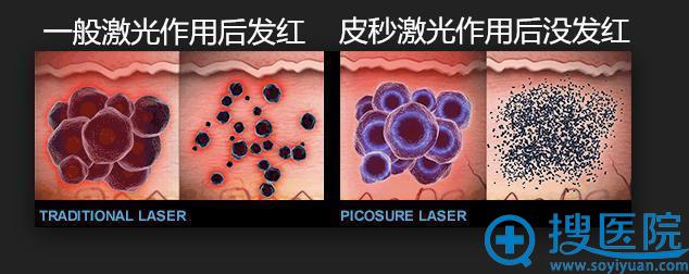皮秒镭射与一般激光的区别