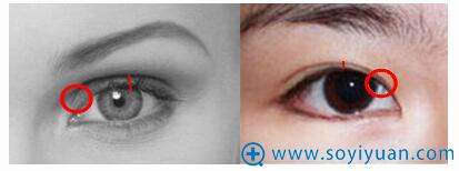 欧式双眼皮(左)与普通双眼皮(右)对比图