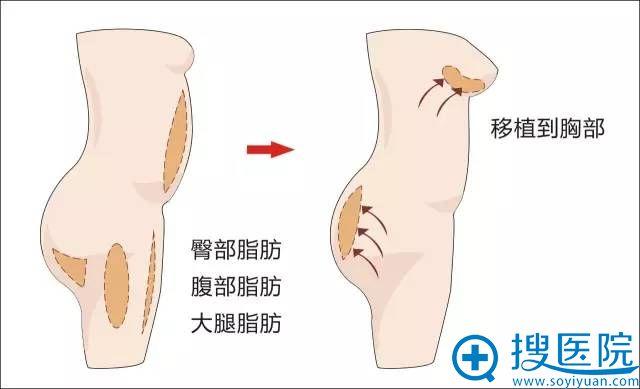 臀部、腹部、大腿脂肪可以一会到胸部