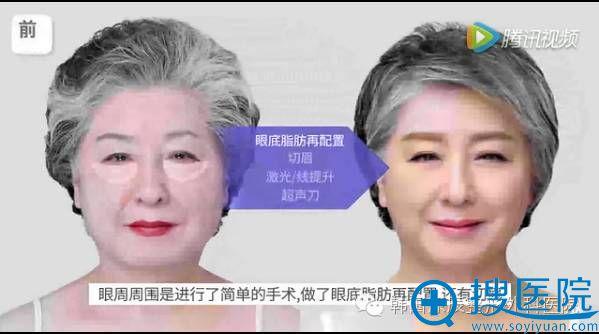 面部提升手术前照片